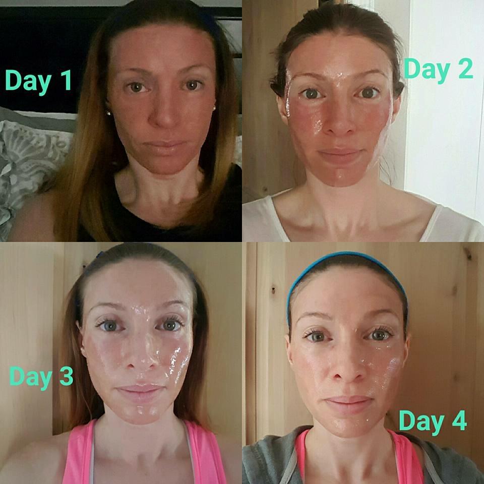 Anti aging acne treatment