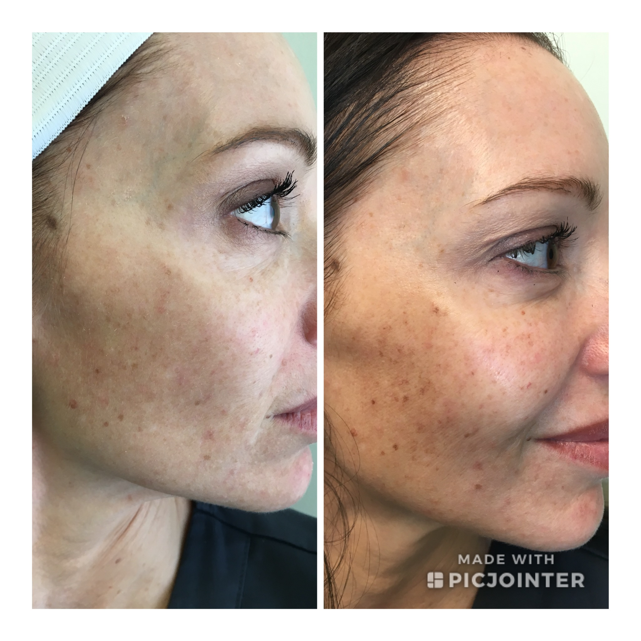 photofacial before and after in tempe at NEOS Med Spa