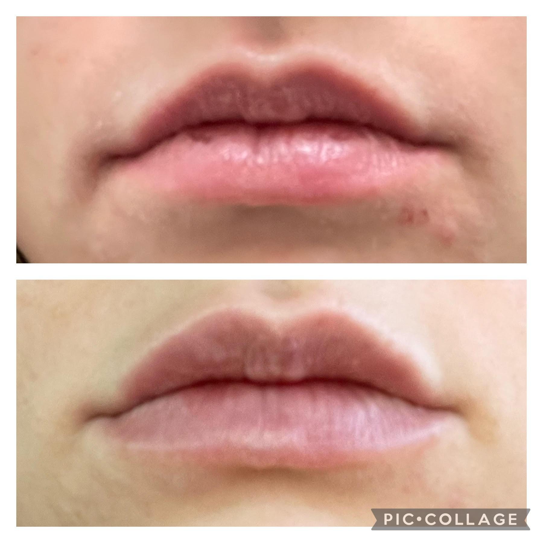 lipslips