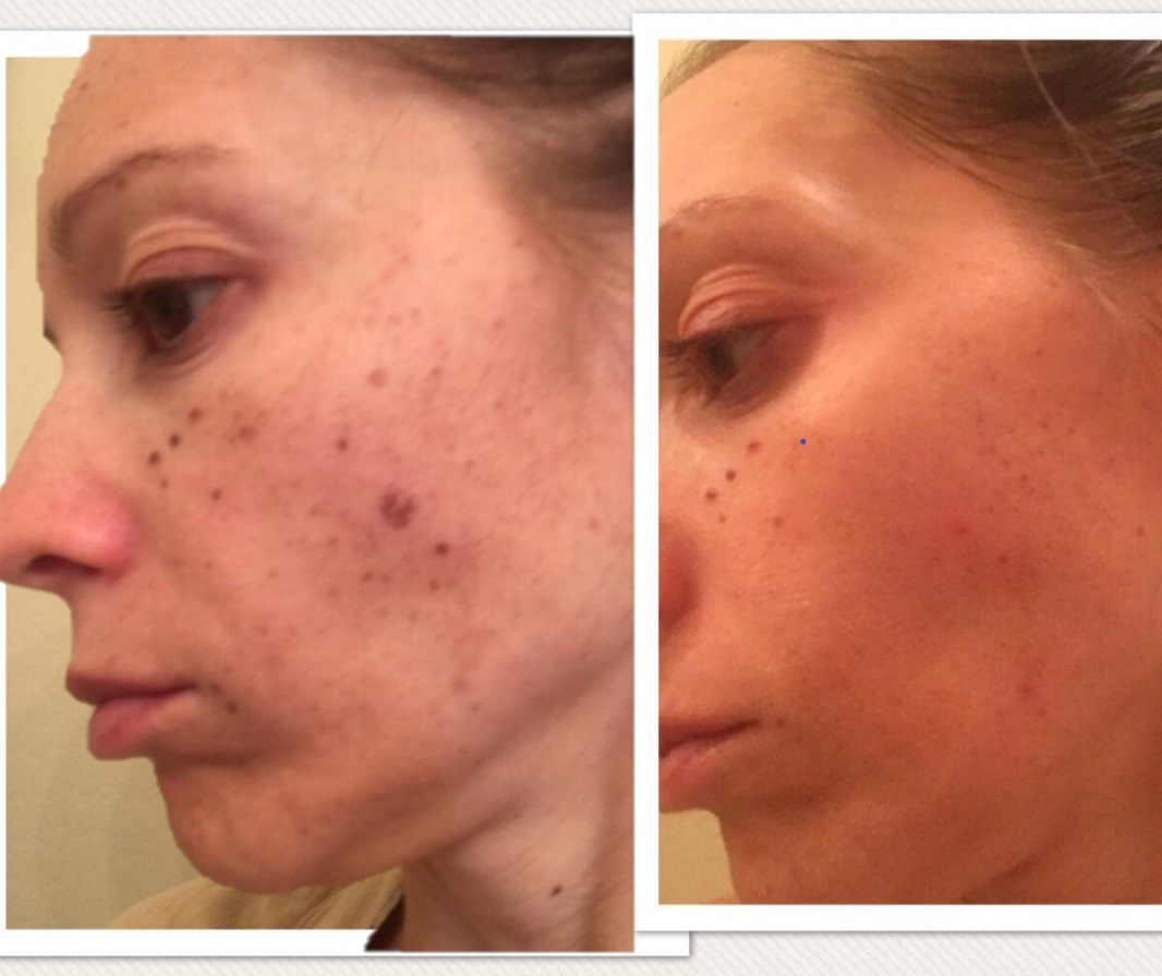 PhotoFacial, BBL, Acne, laser, skin, antiaging, agespots, scars, wrinkles